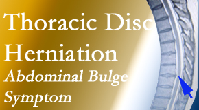 Manchester Chiropractic & Sports Injuries treats thoracic disc herniation that for some patients prompts abdominal pain.