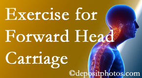 Manchester chiropractic treatment of forward head carriage is two-fold: manipulation and exercise.