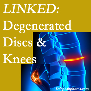 Degenerated discs and degenerated knees are not such strange bedfellows. They are seen to be related. Manchester patients with a loss of disc height due to disc degeneration often also have knee pain related to degeneration.